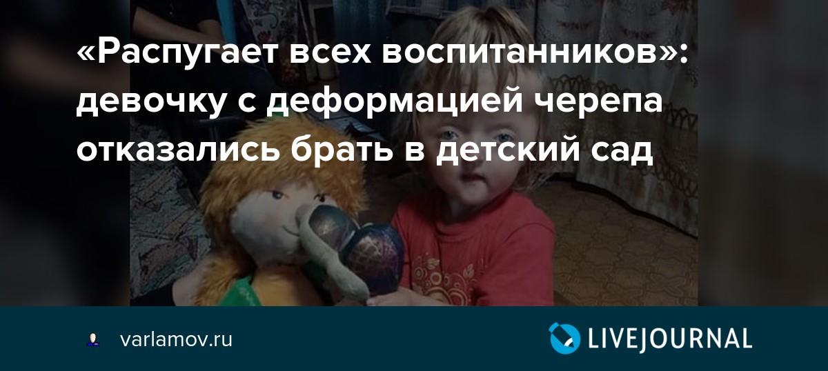 «Распугает всех воспитанников»: девочку с деформацией черепа отказались брать в детский сад