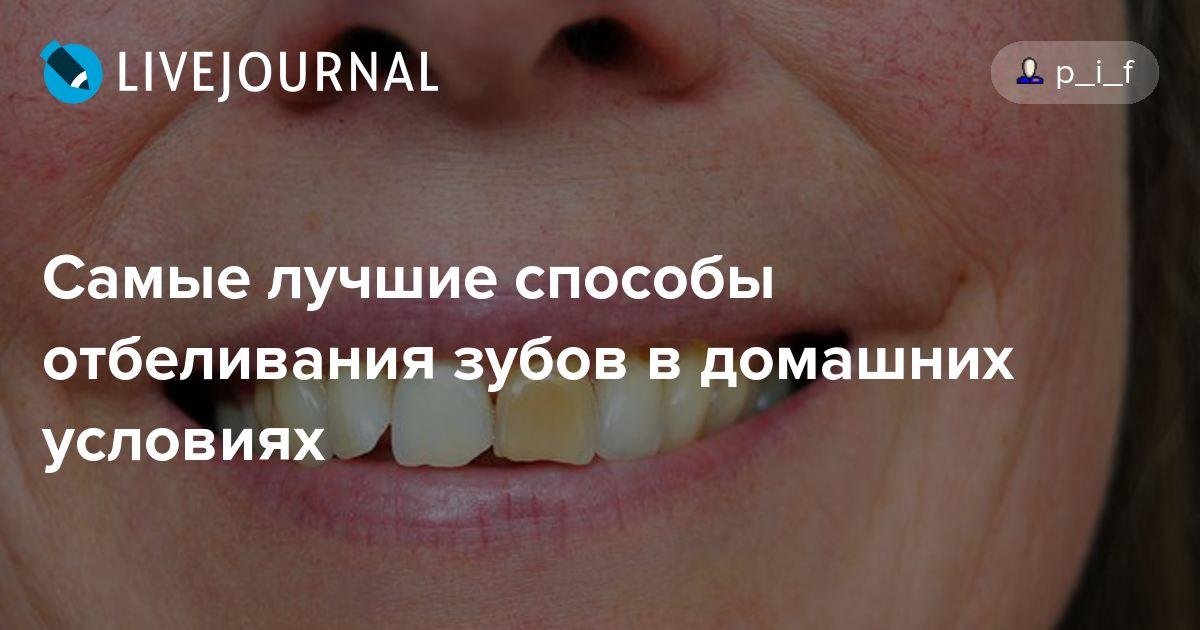 Как отбелить зубы в домашних условиях без вреда эмали?