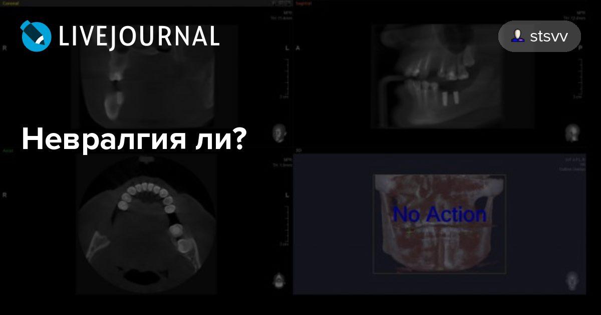 Тройничный нерв и зубная боль, лечение невралгии и операция