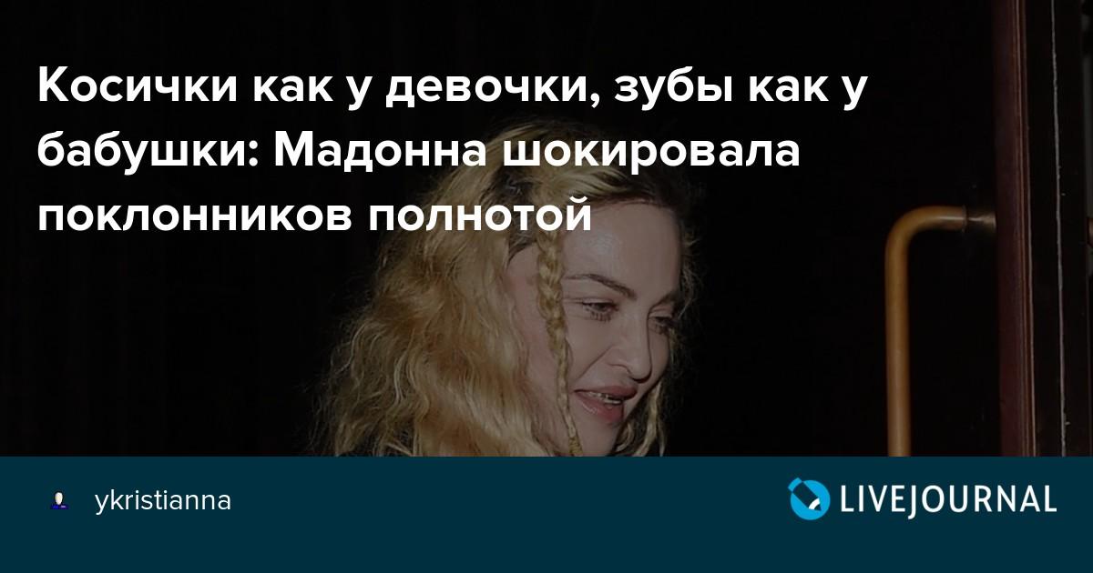Косички как у девочки, зубы как у бабушки: Мадонна шокировала поклонников неопрятным образом и полнотой