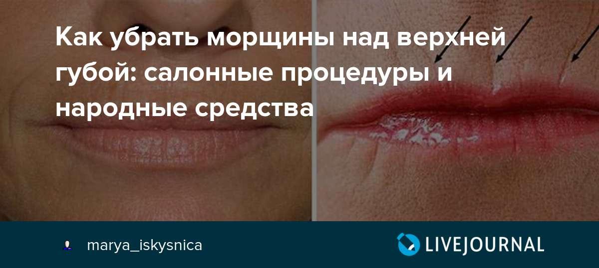 Как убрать морщины над верхней губой: салонные процедуры и народные средства