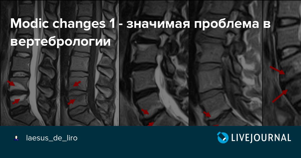 дегенеративный отек костного мозга позвонков очень жаль
