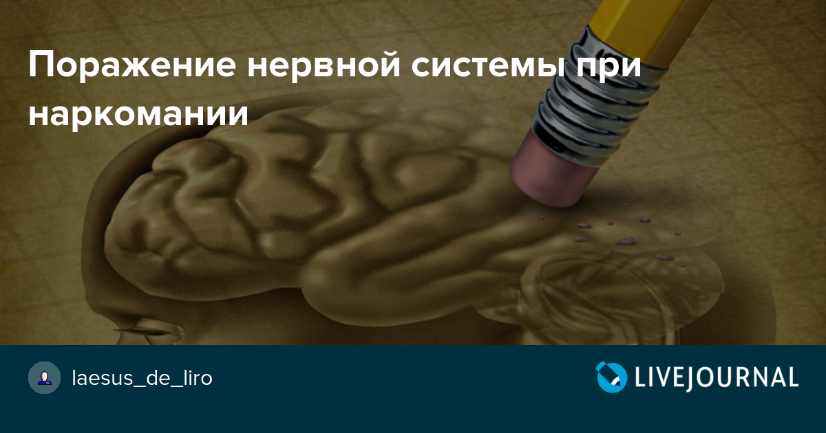 Энцефалопатия наркомания отзывы о лечении наркомании