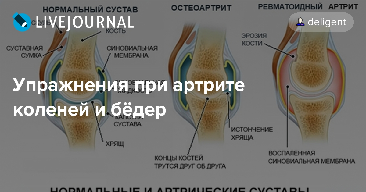 Что такое коленный артроз и как его лечить