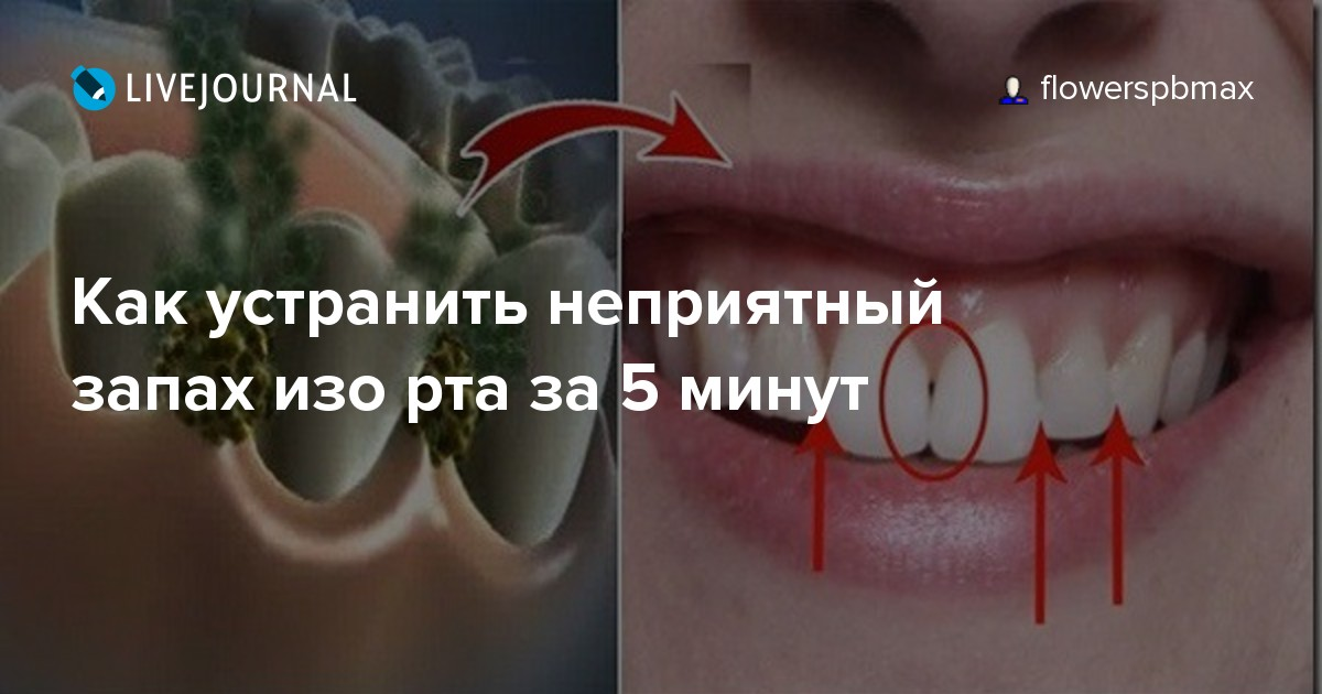 неприятный запах изо рта кишечник