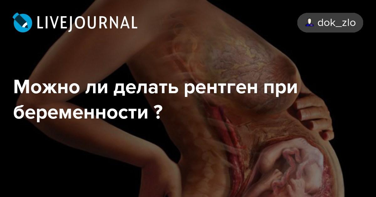 Делают ли флюорографию беременным на раннем сроке 1044